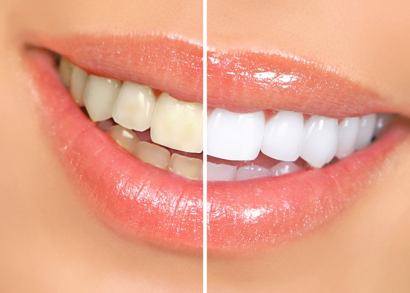 Teeth Whitening Morrilton, AR